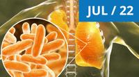 Environmental Mycobacteria JUL 22