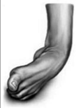 High Ankle Sprain v. Low Ankle Sprain