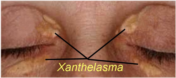 Xanthelasma eyelid lipid deposits have no symptoms but are not attractive