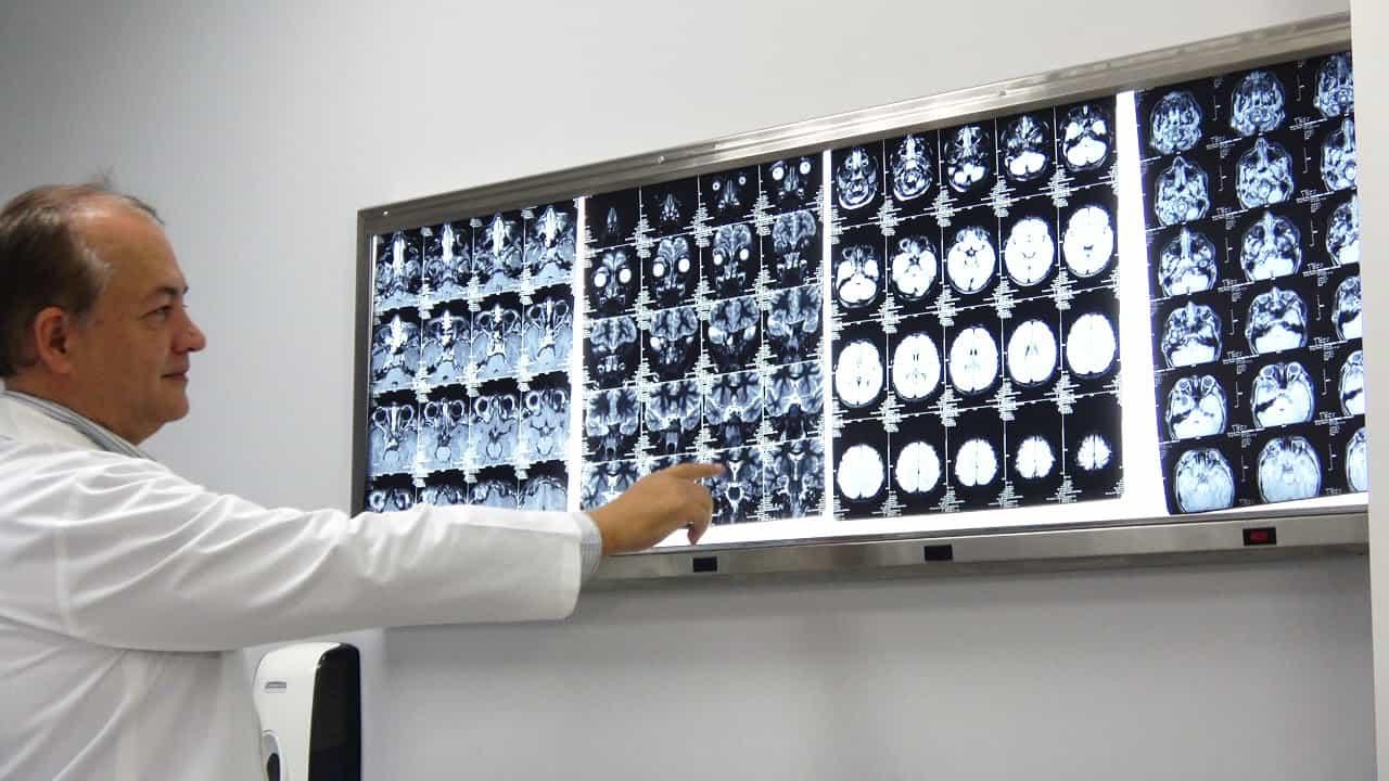 doctor de gamma knife examinando tumores cerebrales en una radiografia