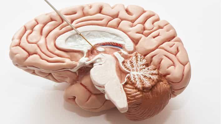 modelo de cerebro sano intacto