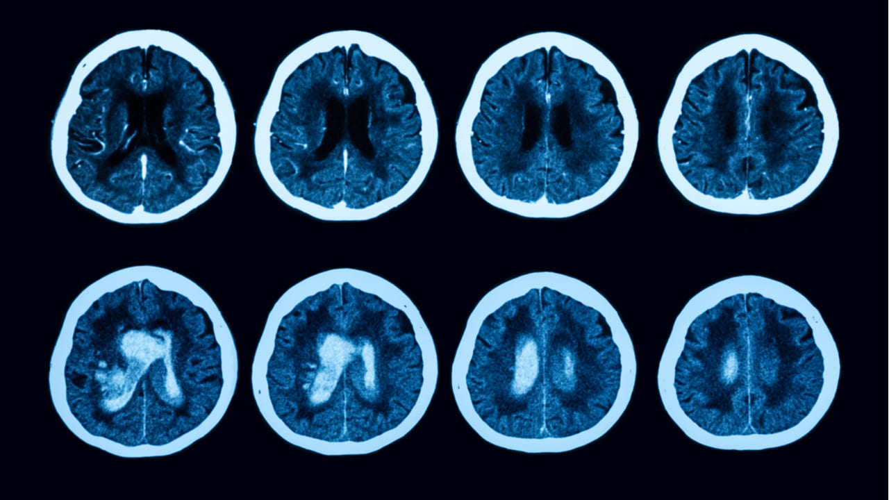 radiografia del cerebro que evidencia tumores cerebrales