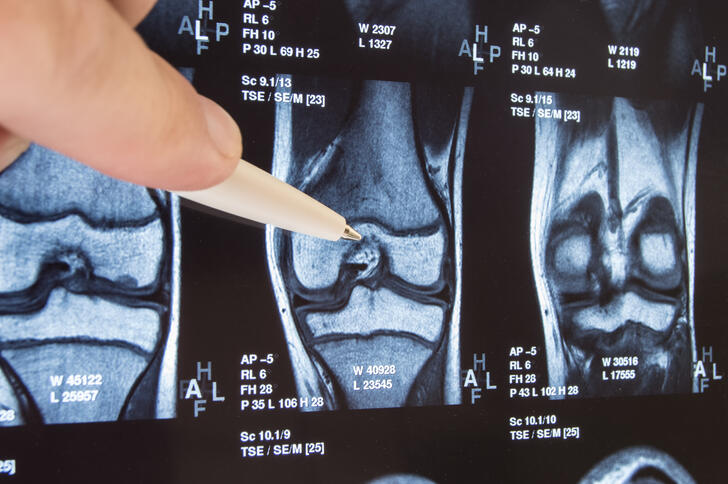 What Happens When Knee Cartilage Is Damaged