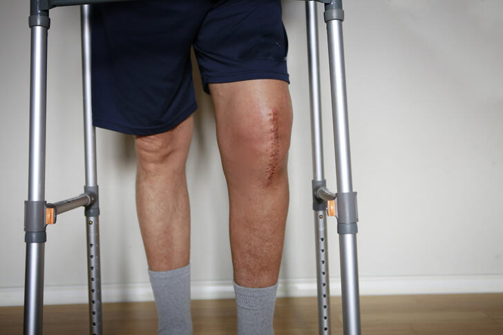Knee Replacements: More Pain, Less Gain