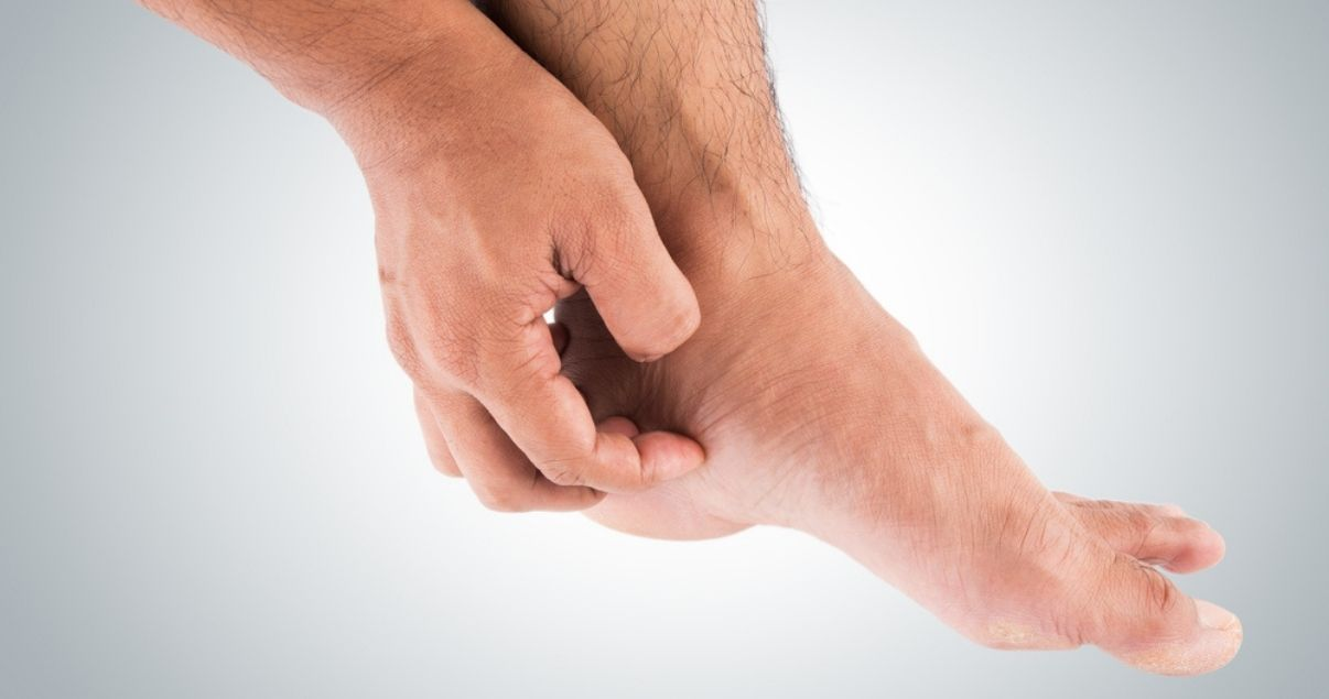 itch is one of many athletes foot symptoms