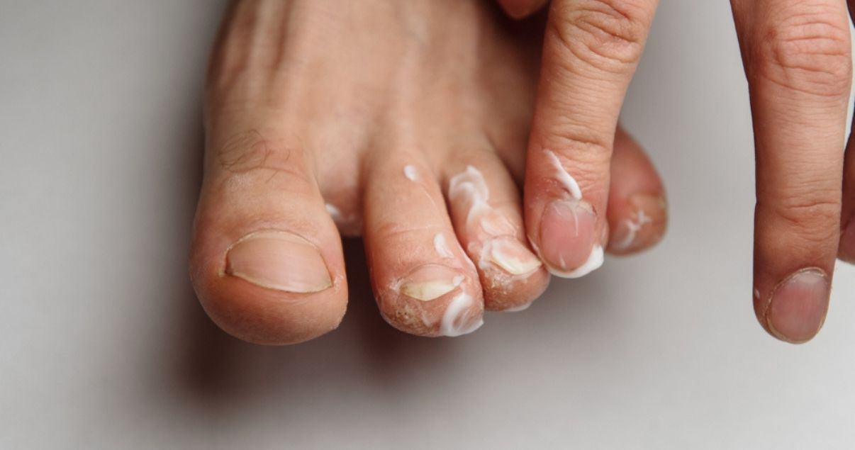 silka cream is a great athletes foot treatment
