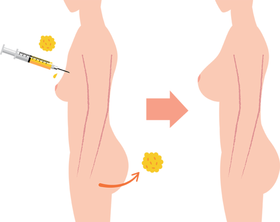 fat grafting to breast diagram