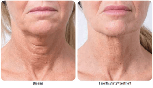 before-after-profhilo-3