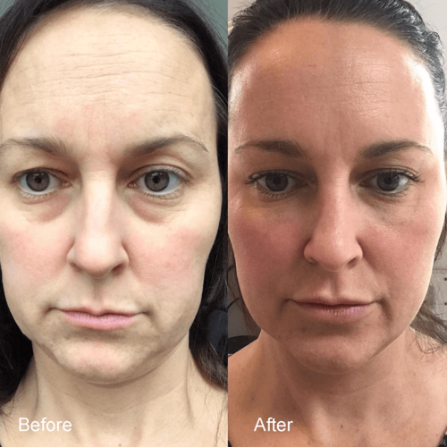 before-after-profhilo-face-4