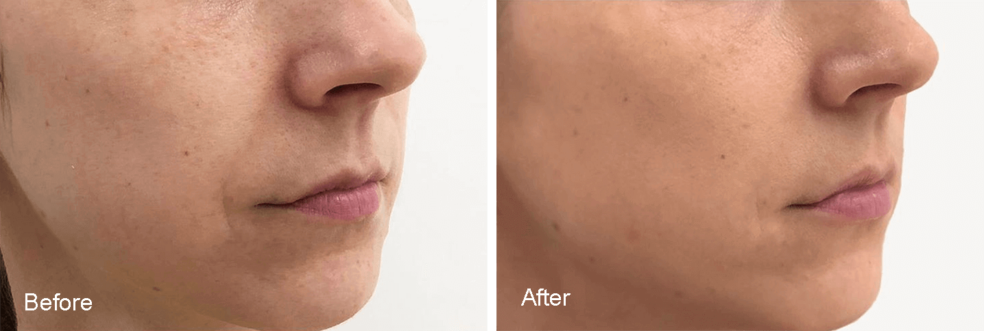 before-after-profhilo-face-7