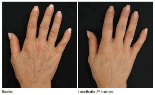 before-after-profhilo-hands